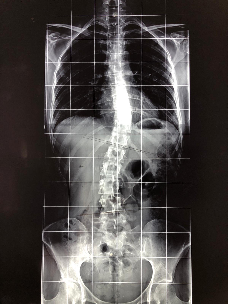 1-escoliosis-quiropractica