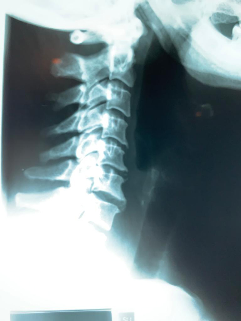 20-Causas y consecuencias de la Artrosis