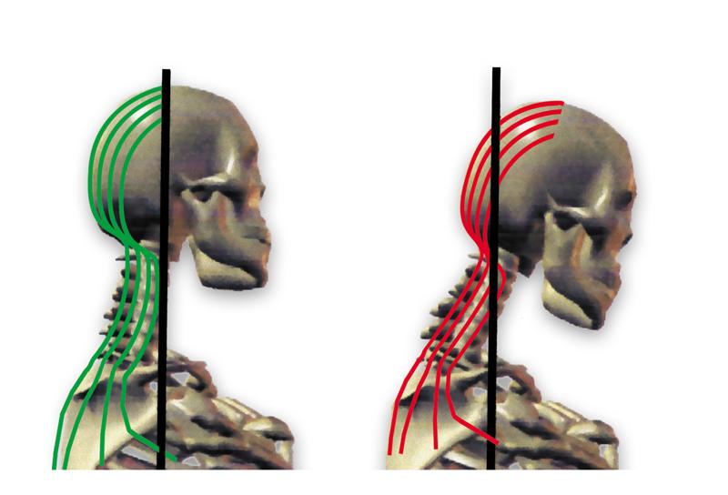 36-Text neck y la Quiropráctica