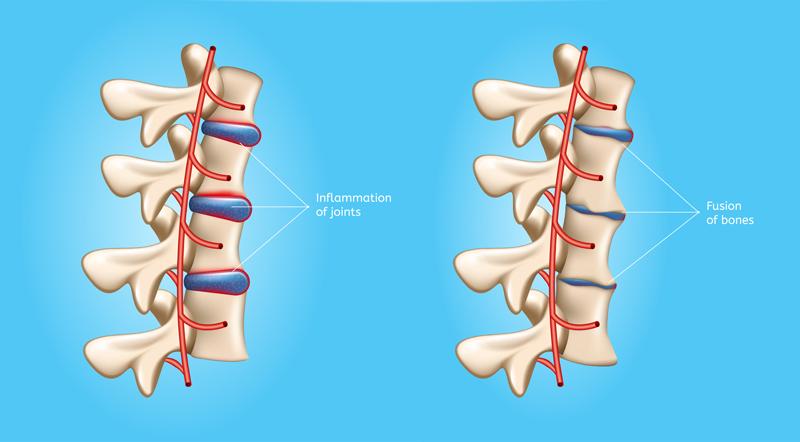 46-Problemas causados por la Espondilitis Anquilosante