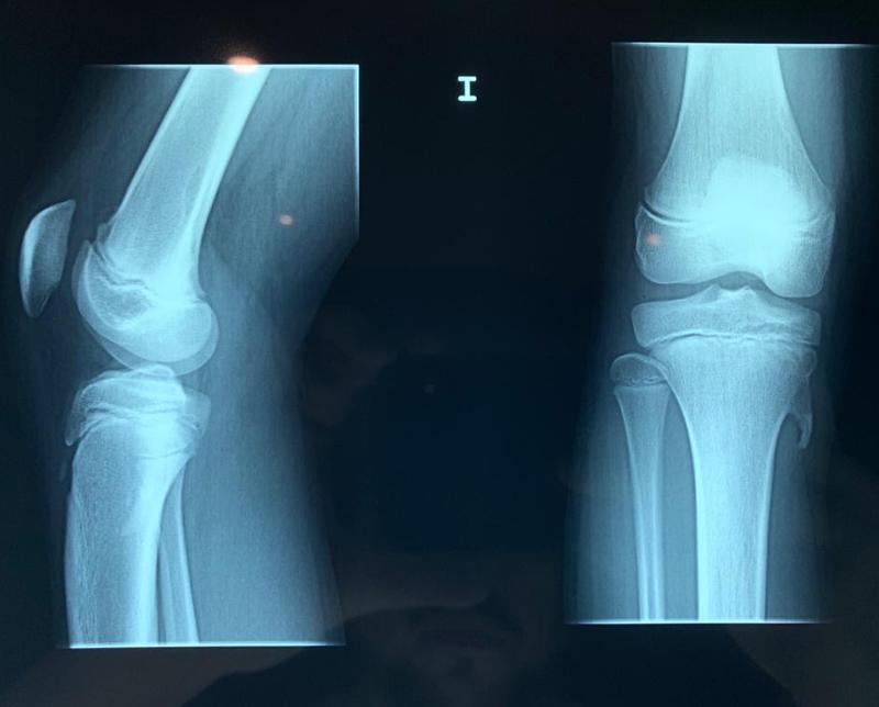 48-El tratamiento para la condromalacia con la quiropráctica