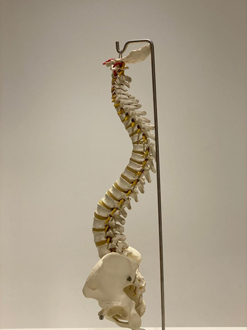 5-lordosis-quiropractica-1