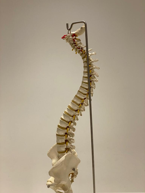 5-lordosis-quiropractica-2