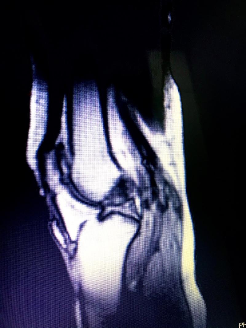 51-El Tratamiento para el desgaste de meniscos con la quiropráctica