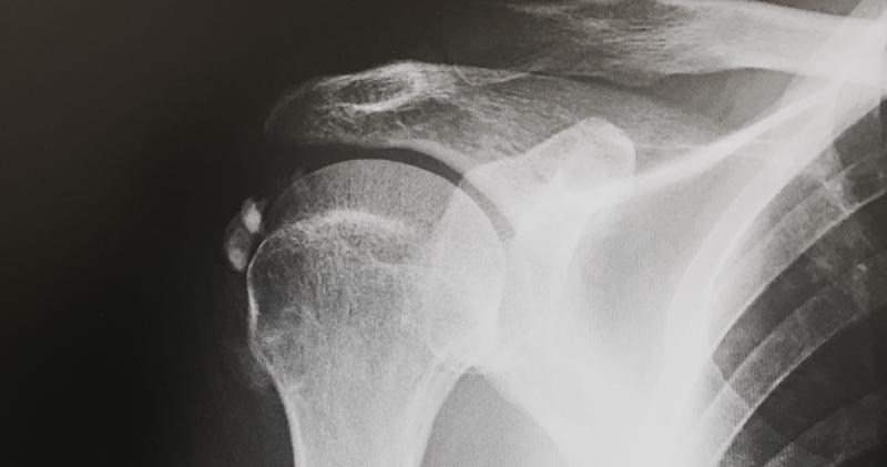 52-Qué es la capsulitis del hombro