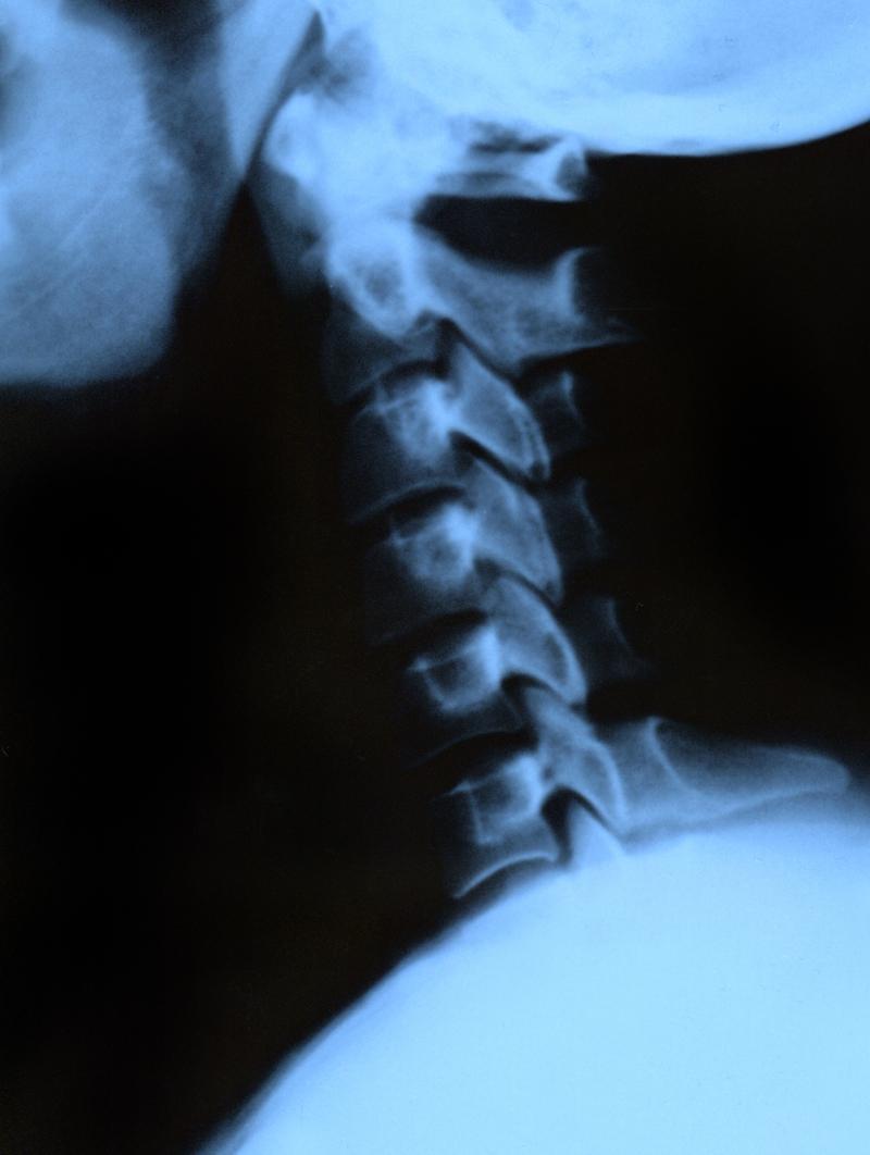 59-Cómo tratar el Dolor de Cadera